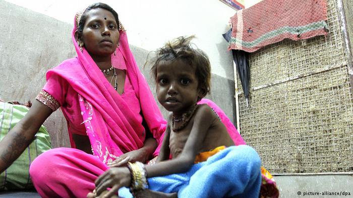 According to the government is almost every second child in India chronically malnourished. © picture-alliance/dpa