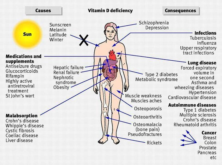 Vitamin-D-deficit_image