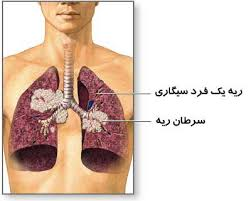 lungs_of_a_smoker_with_cancer