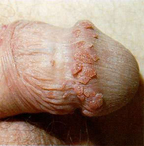 photo: the Genital Warts Solution